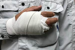 Employee with injured hand in cast